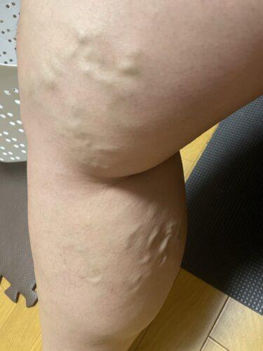 入院決定!手術することとなった「下肢静脈瘤」とは?症状や治療法を自分で調べる
